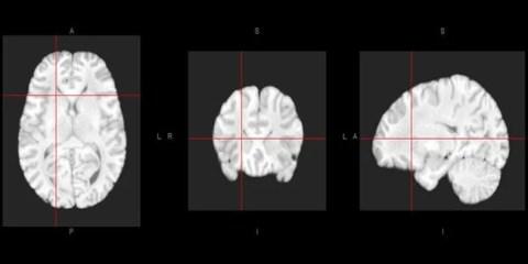human-brain-atlas-allen-complexity