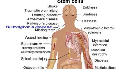 huntingtons-disease-skin-stem-cells