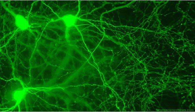 mch-neurons-hypothalamus