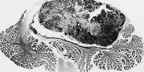 medulloblastoma-brain-tumor-public