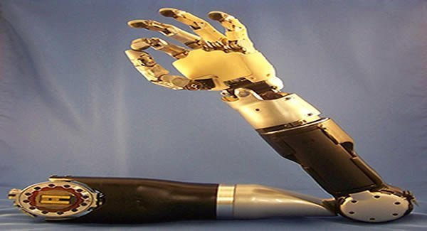 prosthetic-arm-thought-control