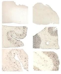 brain slice images