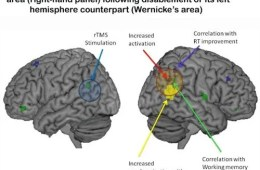 Two brain images are shown side by side with Wernicke's area highlighted.