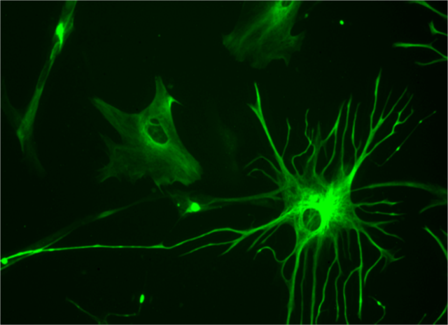 Human astrocyte is shown.