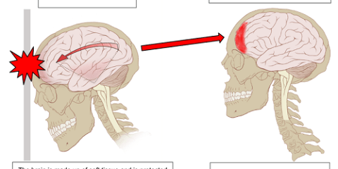 The image is a drawing which outlines what happens to the brain when concussion occurs.