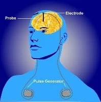The image is an illustration of a deep brain stimulation device fitted.