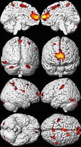The image shows MRI brain scans of adults exposed to lead as children.