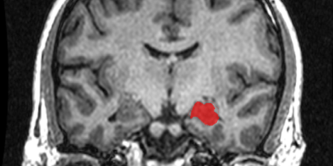 The MRI image shows the location of the hippocampus in the brain.