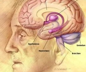 The image is a drawing of an old man with the brain exposed and specific areas targeted.