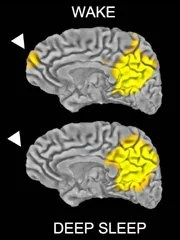 This fMRI shows the activity during deep sleep and wakefulness.