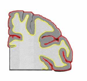 This is a coronal slice of the cerebral cortex.