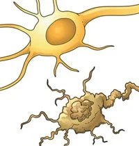 The illustration shows a neuron undergoing apoptosis.