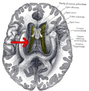 The image highlights the location of the corpus callosum in the brain.
