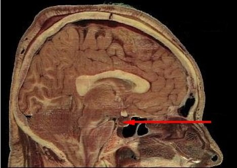 This image shows the location of the pituitary gland in the human brain.