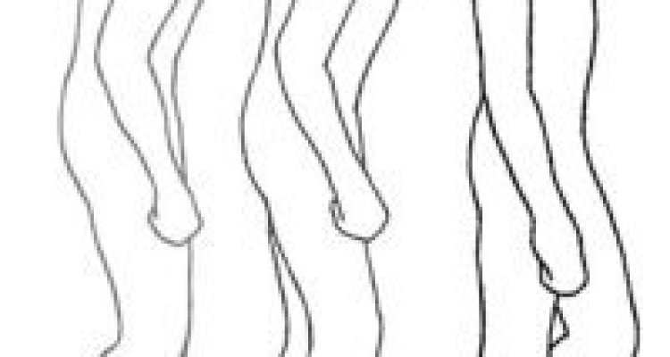 The image shows a diagram of a person improving gait with smart glasses on.