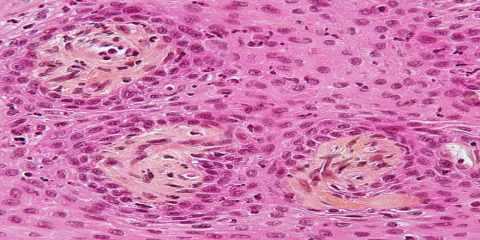 BIG_Papillary_craniopharyngioma-stained