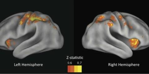 MRI imaging of risky behavior in the brain