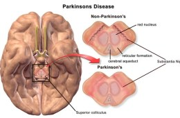 Parkinson's Disease brain is compared