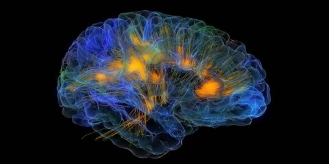 This image shows a brain with neurons firing.
