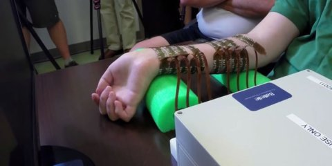 The image shows patient, Ian Burkhart, moving his arm.