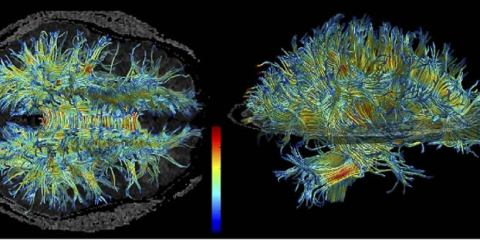 This image shows is an MRI of white matter in the human brain.