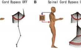 The image is a diagram of a person with the spinal cord bypass switched off and on.