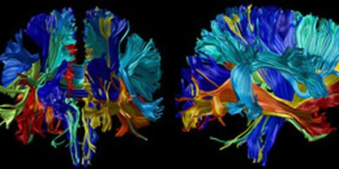 The image shows the differences in brain volume tracked over time.