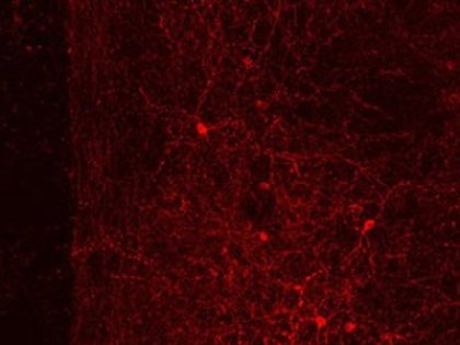 This image shows neurons in the medial prefrontal cortex.