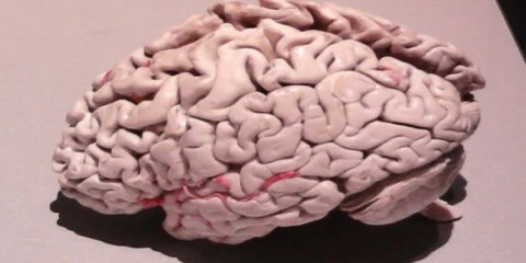 This image shows a plastinated alzheimer's brain.