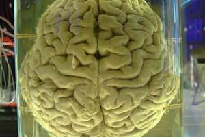 This image shows a human brain in a jar.