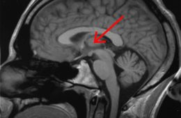 This image shows the location of the thalamus in the human brain.