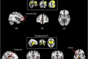 Images shows brain scans taken from the research.