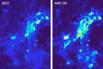 Images show calcium ion influx into neurons.