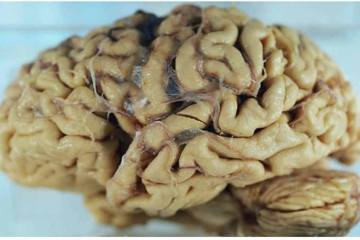 This shows a brain of an alzheimer's patient.