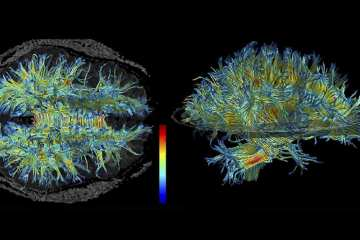 Images shows the white matter structure of the human brain.