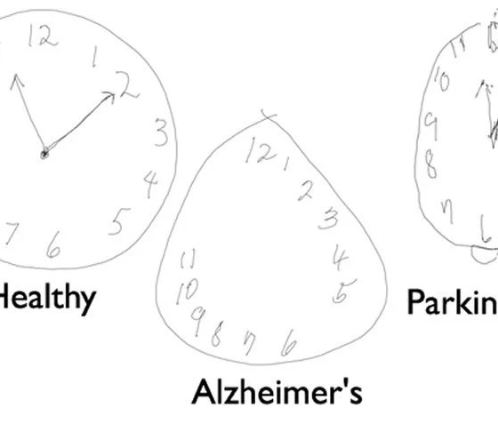 detecting alzheimer u2019s disease by drawing a clock face with