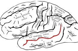 This shows the location of the superior temporal sulcus.