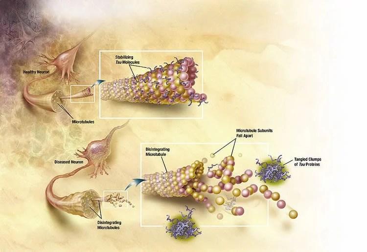 study shows direct relationship between alzheimer u2019s tau protein and cholesterol  u2013 neuroscience news