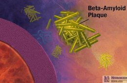 Diagram of amyloid beta plaques attacking a cell.