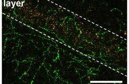 Image shows domapine neurons in the hippocampus.