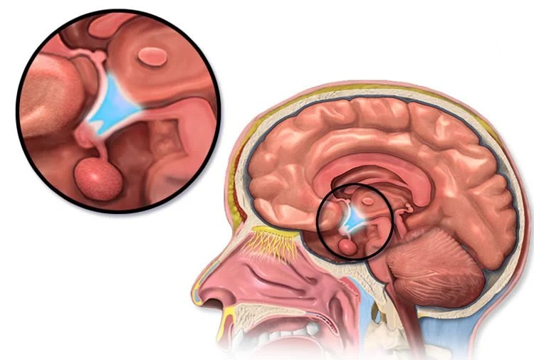 Image shows the location of the hypothalamus in the brain.