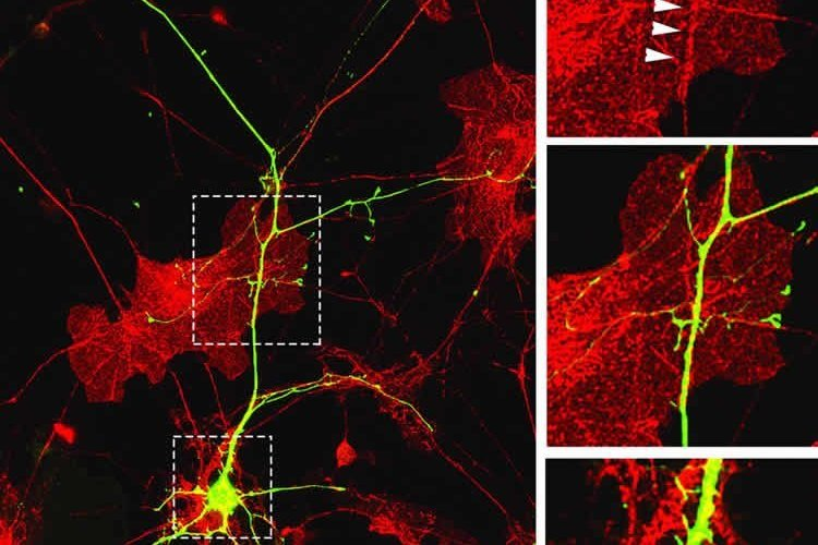 Image shows dendrites and neurons.