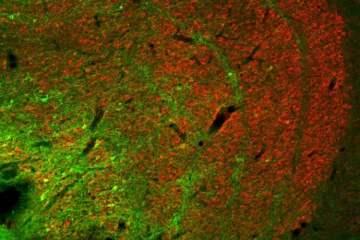 Image shows konio neurons.