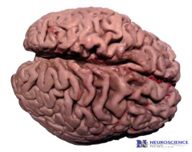 Image shows the brain of an alzheimer's patient.