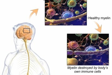 Image shows how myelin is lost in ms.