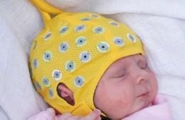 Image shows an baby in an eeg cap.