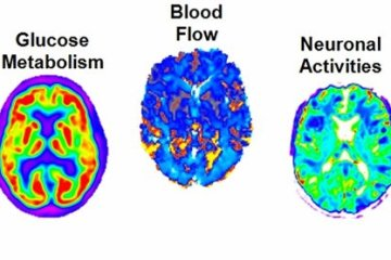 Image shows alzheimer's brain scans.