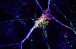 A neuron.