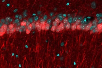 Image shows the CA1 hippocampal area of a mouse brain.