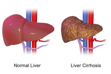 Image shows a normal liver and a liver with cirrhosis.